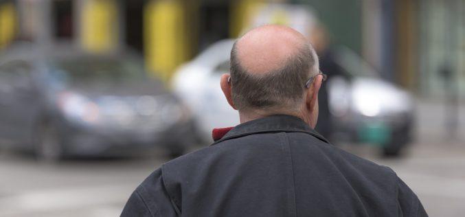Peladofobia: la paura della gente calva e della calvizia