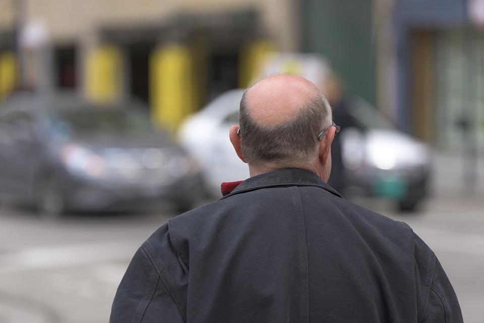 Peladofobia: la paura della gente calva