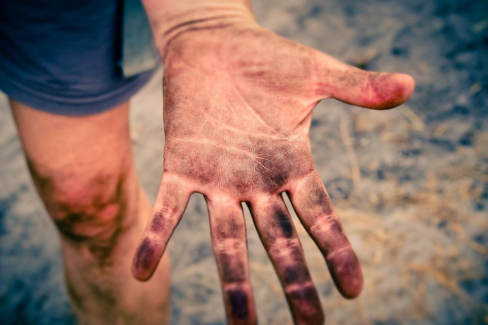 Misofobia: la paura dello sporco
